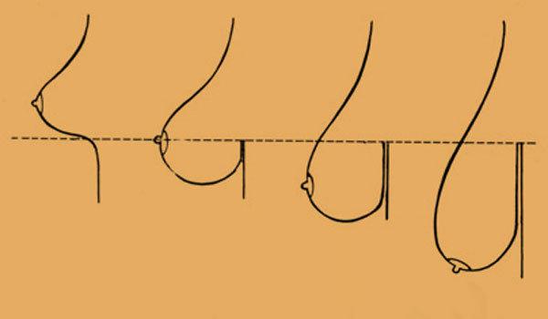 Как подтянуть грудь в домашних условиях — 5 способов подтяжки грудных мышц