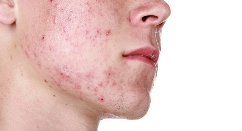 Подкожный клещ на лице и теле – как выглядит, как избавиться от демодекса? Симптомы и лечение демодекоза у человека