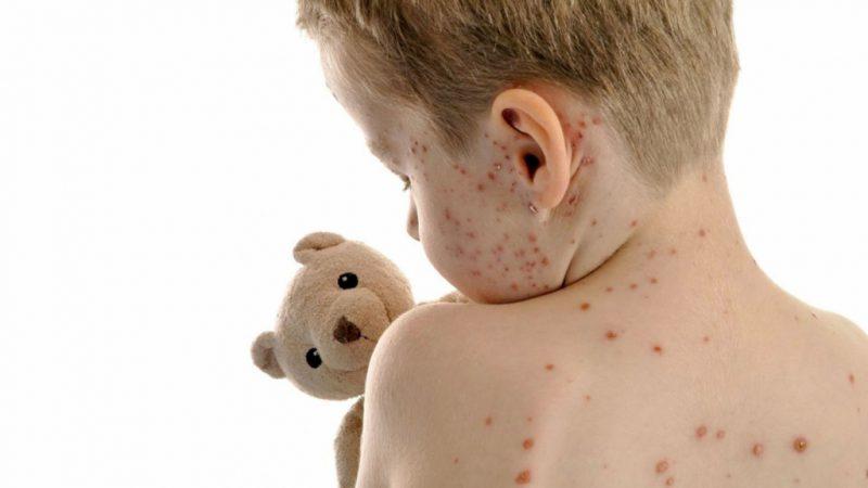 Ветрянка у детей и взрослых: симптомы, лечение, профилактика заражения вирусом ветряной оспы