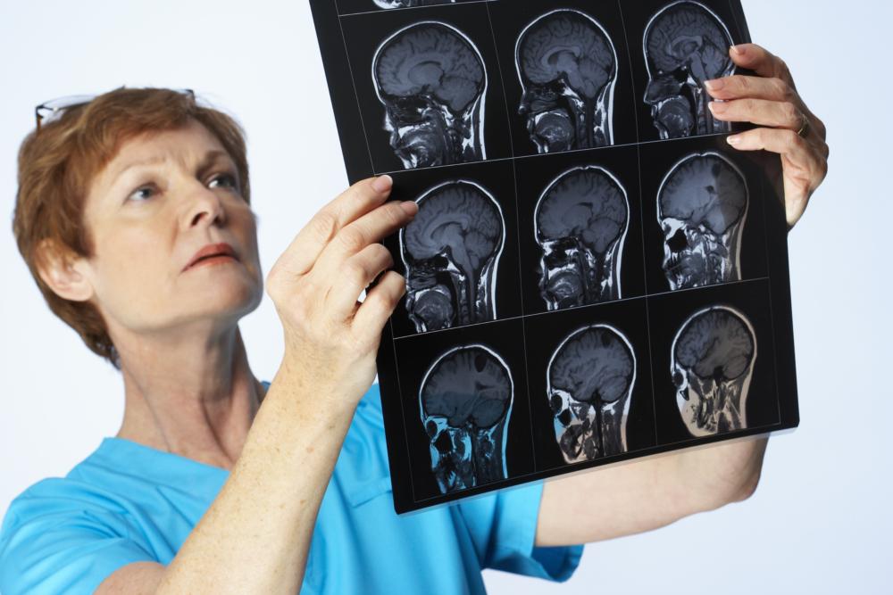 Гнойный менингит у детей и взрослых: симптомы, причины возникновения, диагностика и лечение заболевания