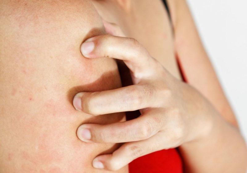 Сыпь при скарлатине у детей и взрослых: как выглядит, чешется или нет, когда появляется, особенности кожных высыпаний