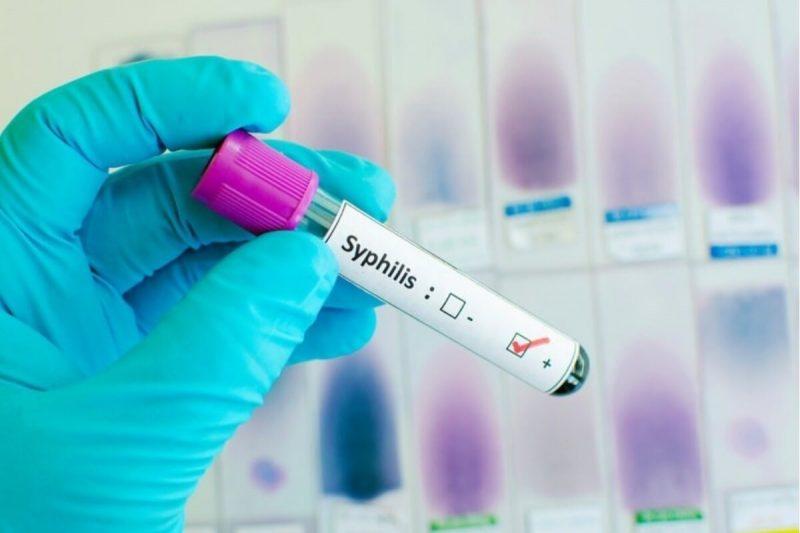 Как передается сифилис, как не заразиться, методы диагностики заболевания