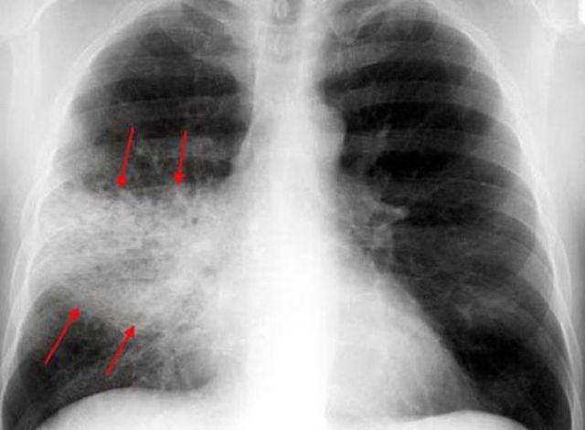Что такое пневмония: симптомы у взрослых и детей, диагностика, виды, возможные осложнения, лечение заболевания