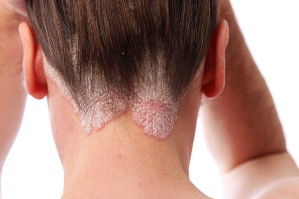 Как лечить псориаз? Причины и симптомы заболевания, методы лечения псориаза в домашних условиях народными средствами и медикаментами