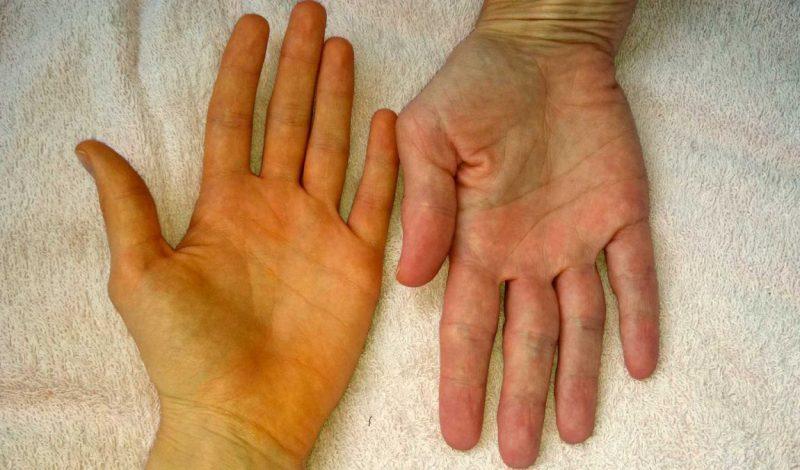 Гепатит C: симптомы и лечение, как передается?