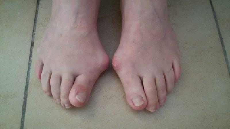 Подагра на ногах: симптомы заболевания у женщин и мужчин, диета, эффективные лекарства, лечение в домашних условиях