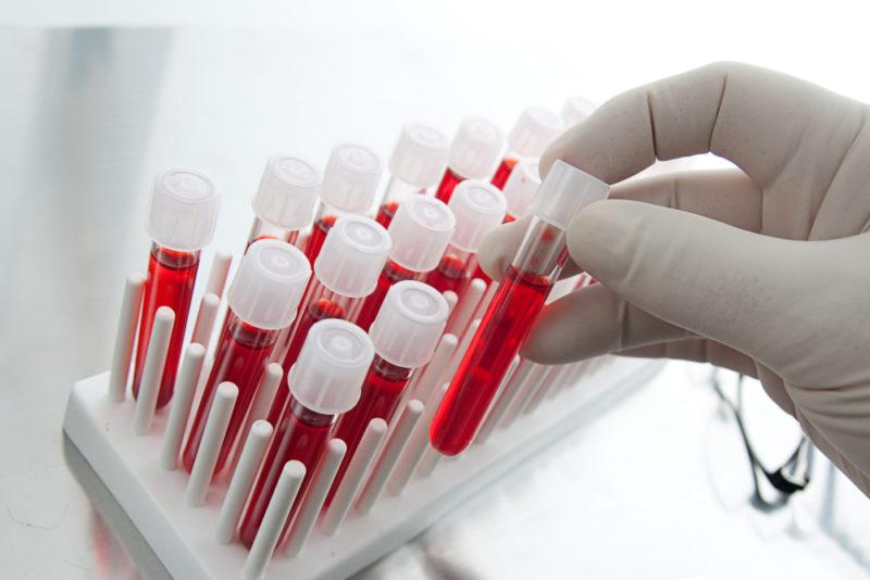 Острый пиелонефрит: причины, симптомы, диагностика и лечение заболевания почек у детей и взрослых