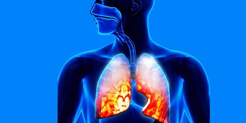 Двухсторонняя пневмония у взрослых и детей: симптомы, диагностика, продолжительность лечения, реабилитация