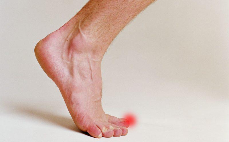 Подагрический артрит: симптомы, диагностика, лечение медикаментами и народными средствами, диета