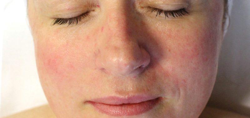 Розацеа: что это такое, причины и лечение розовых угрей на лице