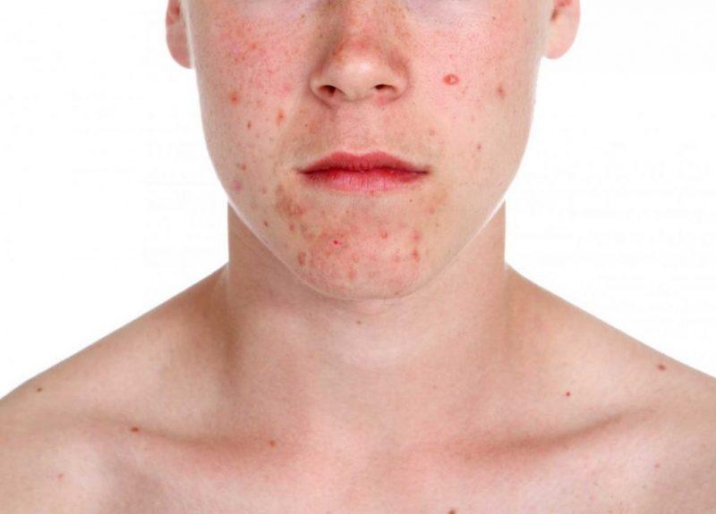 Комедоны на лице и теле: виды, причины, как избавиться