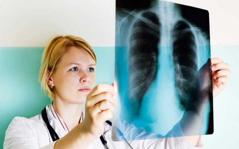Атипичная пневмония: симптомы у взрослых и детей, возбудители атипичной пневмонии, диагностика, лечение и профилактика заболевания