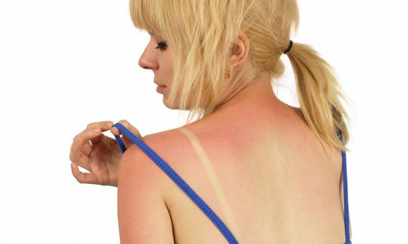 Аллергия на солнце (фотодерматоз): причины, симптомы, лечение у взрослых и детей
