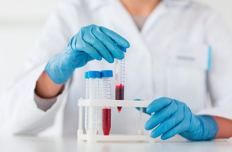 Фолиеводефицитная анемия: причины, симптомы, диагностика, лечение