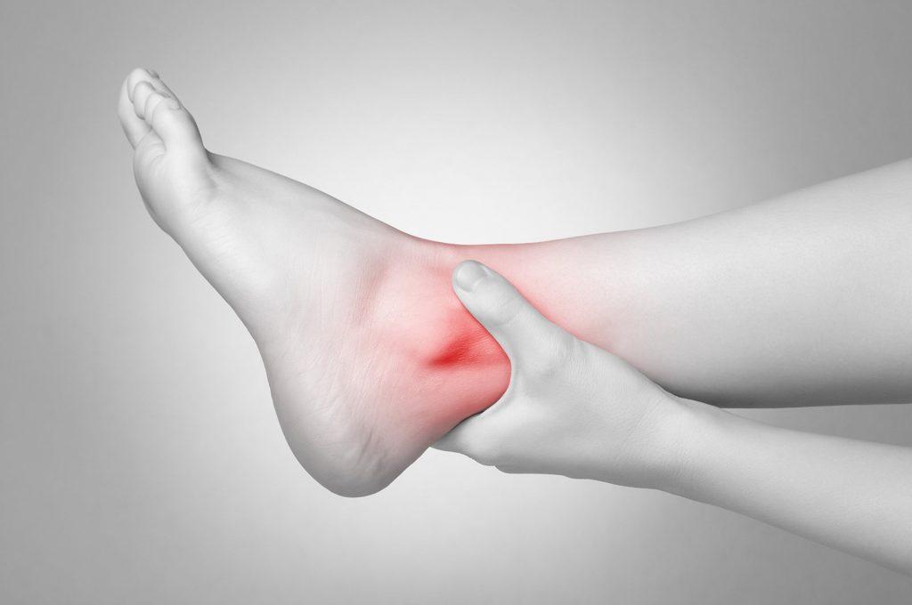 Подагра: признаки и симптомы у мужчин и женщин, причины заболевания, методы лечения в домашних условиях