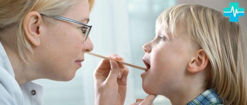Острый тонзиллит у детей и взрослых: причины, симптомы и лечение ангины