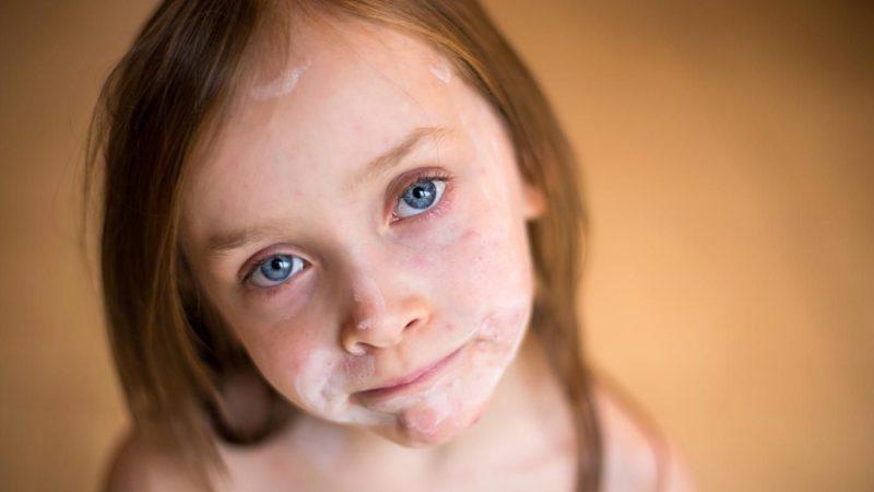 Сыпь при ветрянке у детей и взрослых: как выглядит, на какой стадии появляется, чем обрабатывать