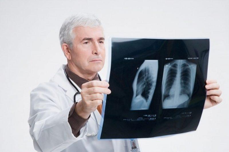 Внебольничная пневмония – что это такое? Причины, симптомы, диагностика и лечение воспаления легких