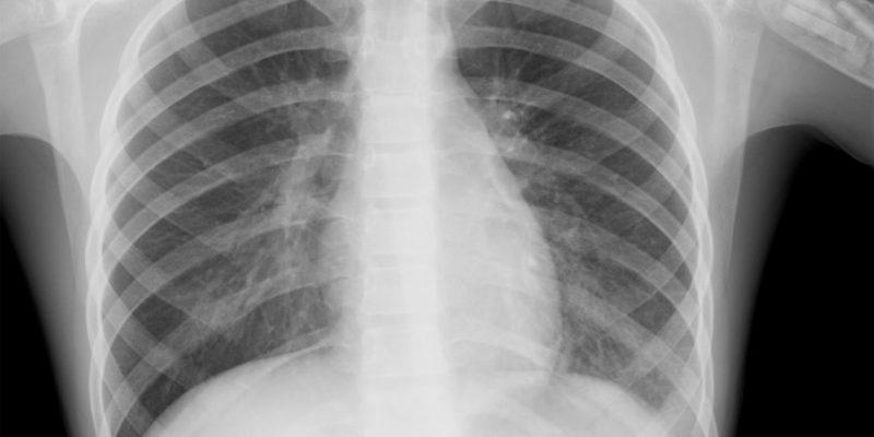 Вирусная пневмония: причины, симптомы и лечение заболевания у взрослых и детей