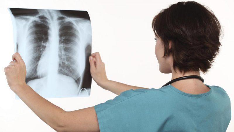 Очаговая пневмония у детей и взрослых: виды, симптомы и лечение заболевания