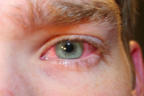 Артелак – глазные капли: все виды, инструкция по применению, состав, аналоги