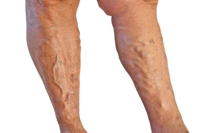 Внутренний геморрой: причины, симптомы и лечение заболевания у женщин и мужчин
