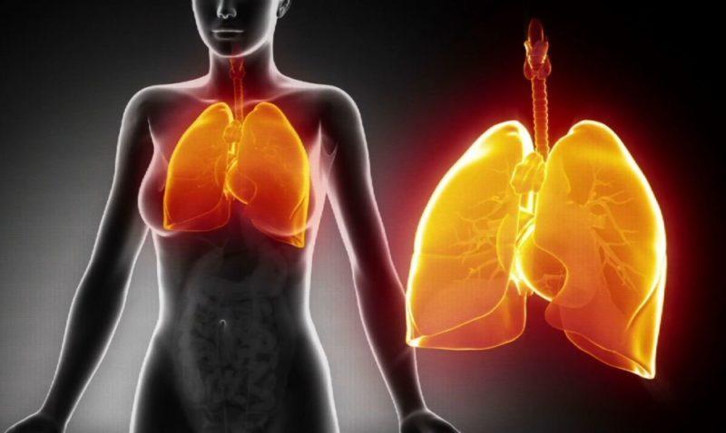 Как лечить пневмонию у детей и взрослых: можно ли лечиться в домашних условиях, к какому врачу обращаться, сколько лечат воспаление легких в больнице, какие препараты назначают