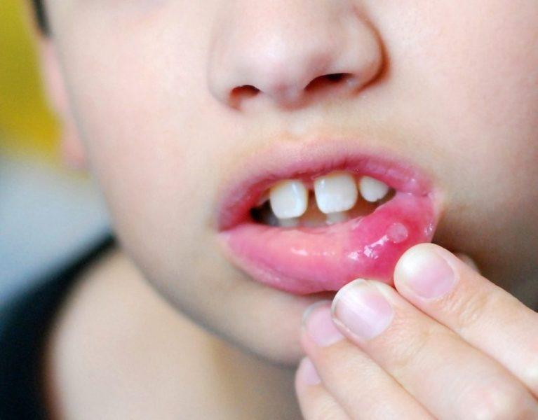 Стоматит у детей: симптомы и лечение в домашних условиях