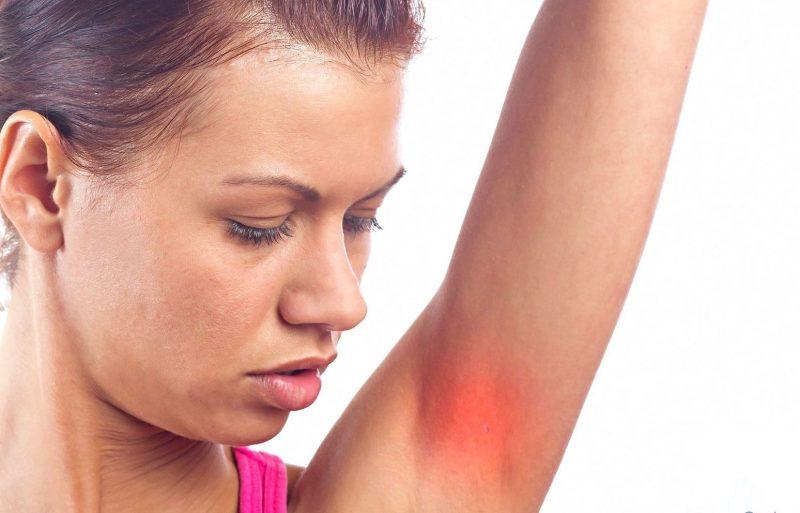 Гидраденит (hidradenitis): причины, симптомы, лечение