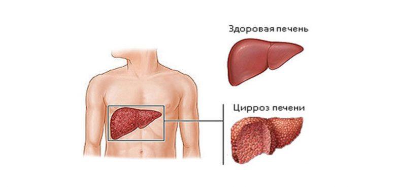 Признаки цирроза печени у мужчин, диагностика на ранних стадиях, причины заболевания