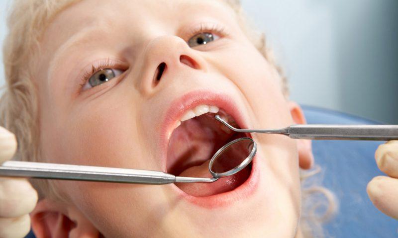 Чем лечить стоматит у детей и взрослых в домашних условиях