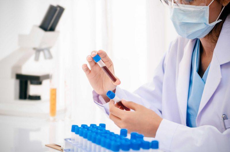 Аланинаминотрансфераза повышена — что это значит? Норма АЛТ у женщин и мужчин, причины повышения фермента в крови