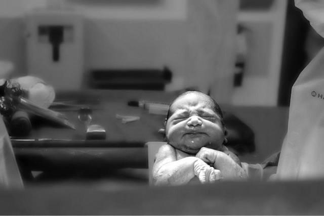 20 фото, которые показывают красоту родов через кесарево