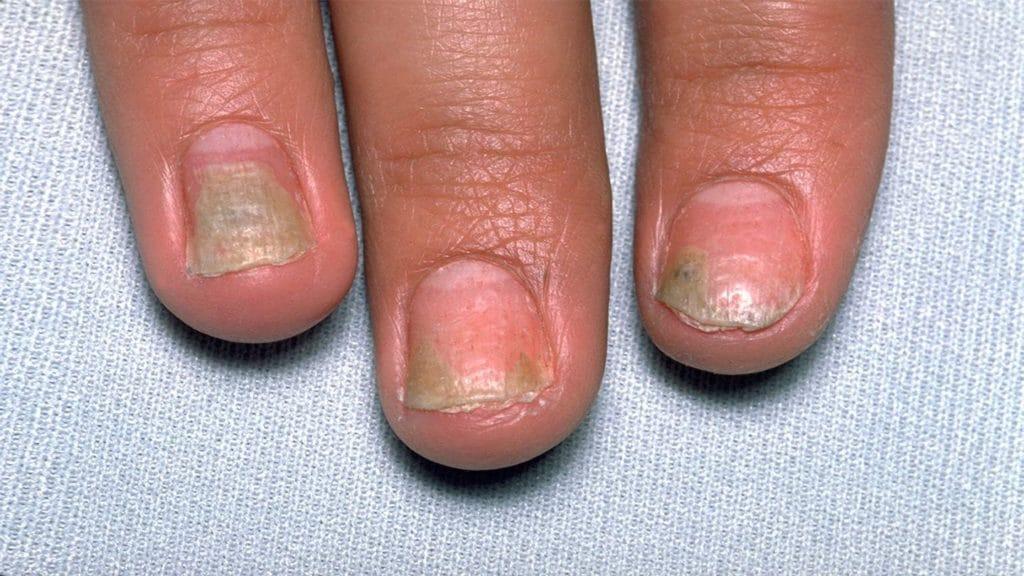 Псориаз ногтей: причины, симптомы и лечение, препараты и народные средства