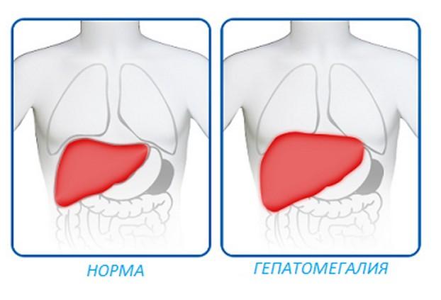 Гепатомегалия: что это такое, причины, признаки, диагностика и лечение заболевания печени у взрослых и детей
