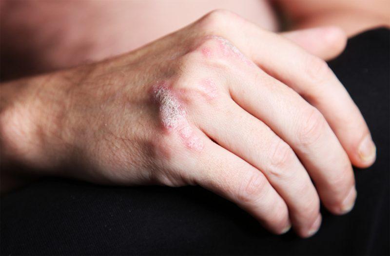 Псориаз на руках: симптомы и лечение чешуйчатого лишая