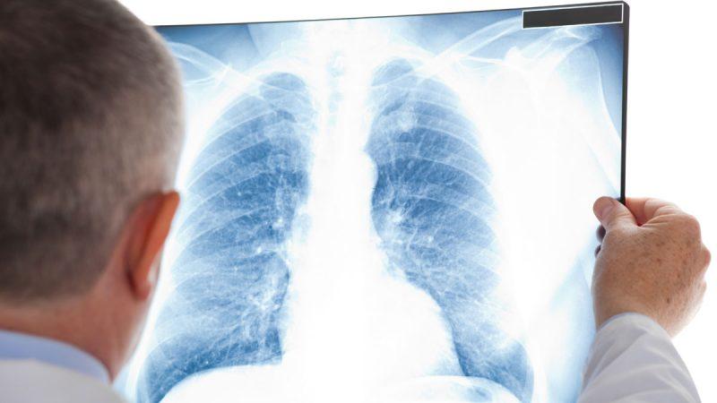 Аспирационная пневмония: симптомы заболевания, лечение у взрослых и детей, возможные последствия
