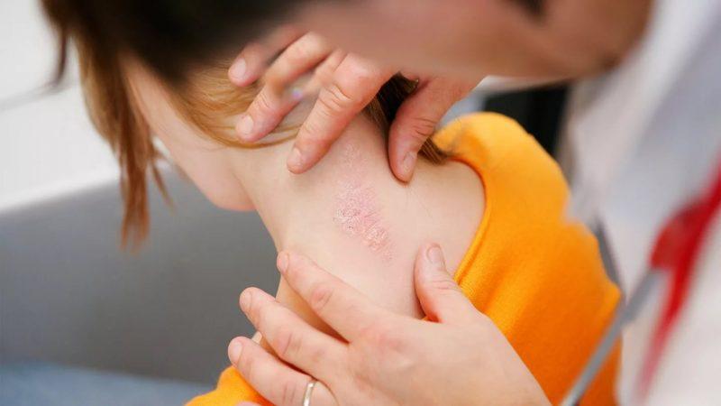 Лечение псориаза в домашних условиях народными средствами и медикаментами