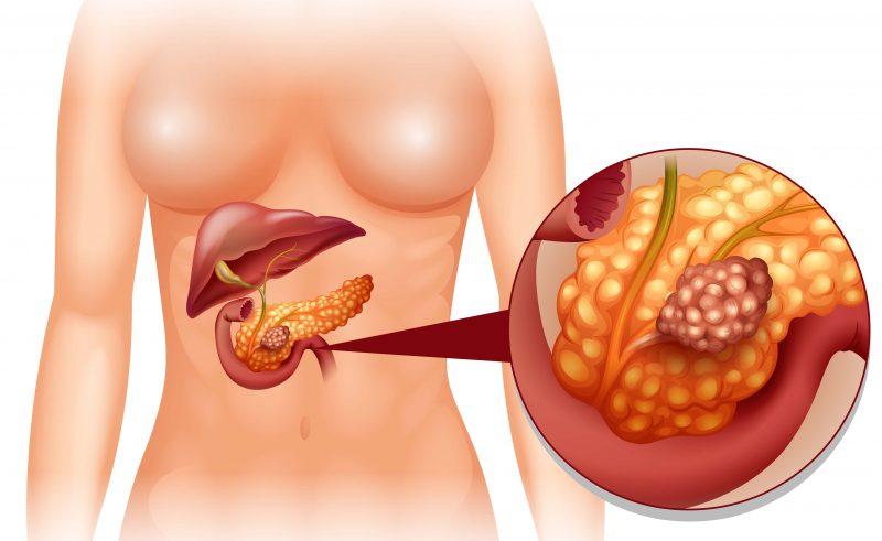 Амилаза панкреатическая: что это, норма в крови, причины повышения и понижения