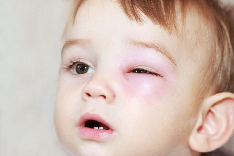 Дакриоцистит у детей и взрослых: виды, симптомы и лечение