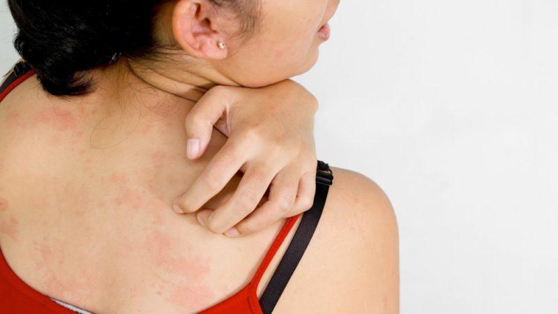 Идиопатическая крапивница: симптомы и лечение, диета, формы заболевания